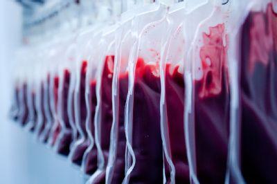V komárňanskej nemocnici môžete darovať krv aj v sobotu